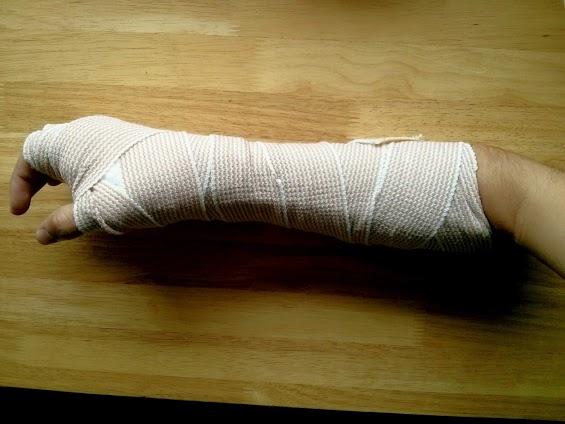 Broken Wrist Woes - 1