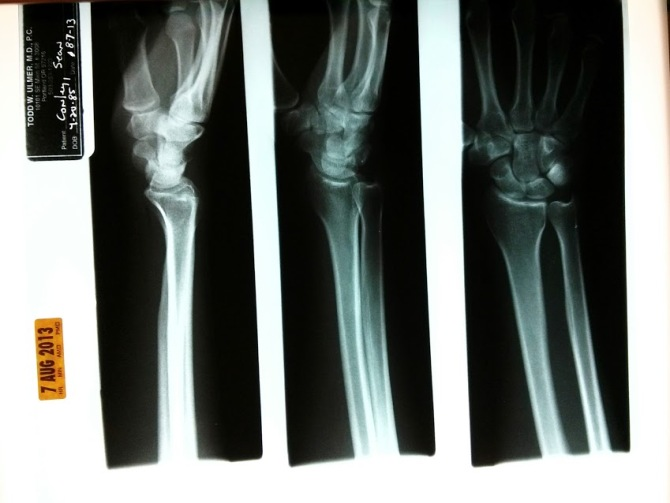 wrist x-rays